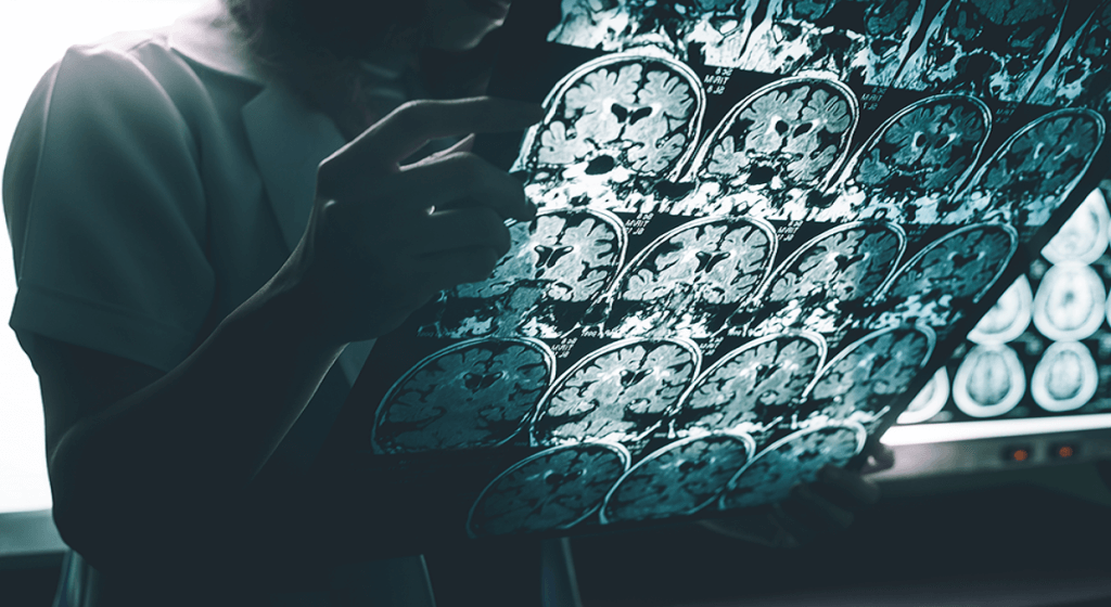 Artificial intelligence may aid in Alzheimers diagnosis