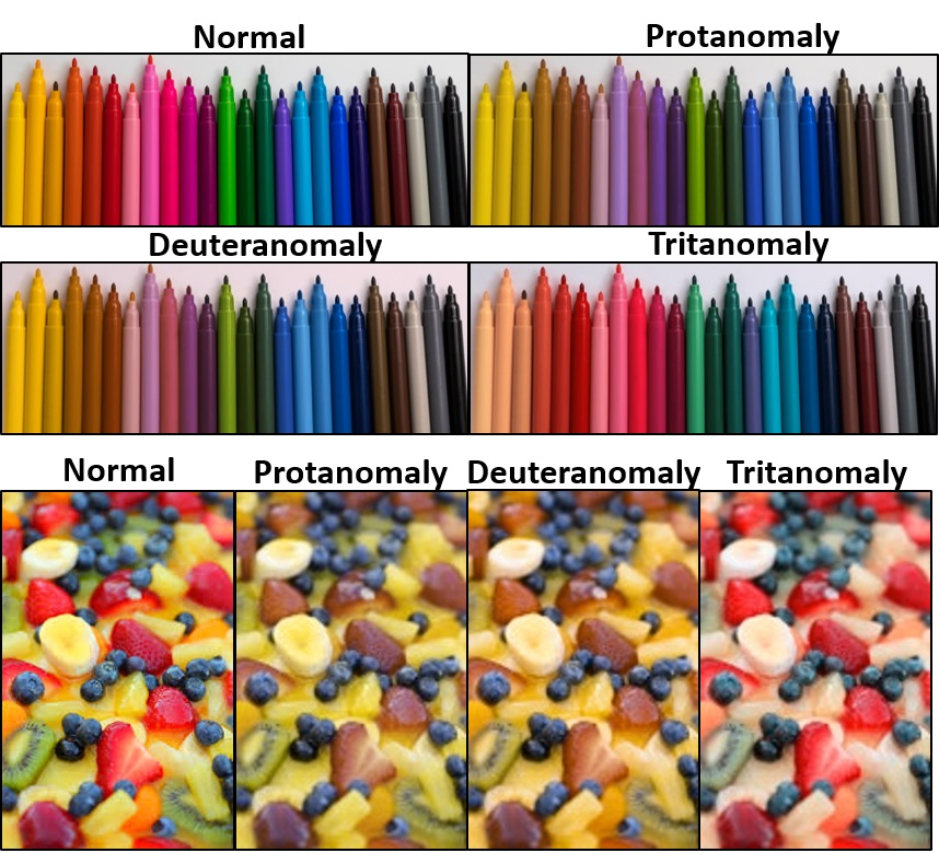 Through Rose-tinted Contact Lenses: Gold Nanocomposites Help the Color-Blind See the World Differently